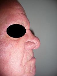Le Traitement au Laser du Rhinophyma